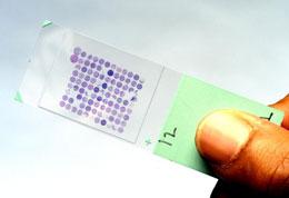 Immunohisto Chemistry