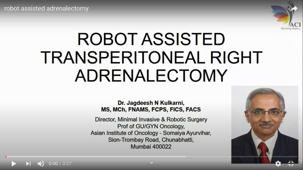 Robot Assisted Adrenalectomy